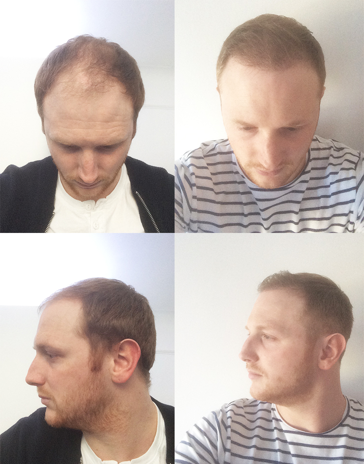 james before after hair transplant