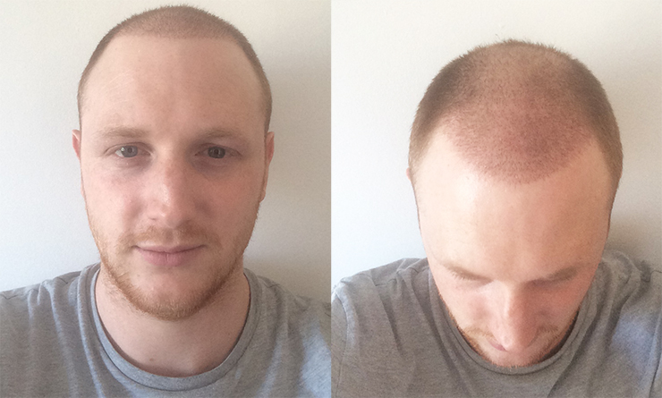 week after hair transplant