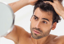Is A Hair Replacement Worth It?