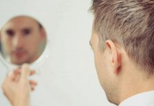 How To Deal With Hair Loss As A Man