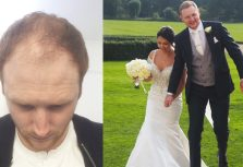 A Reader Gets A Hair Transplant