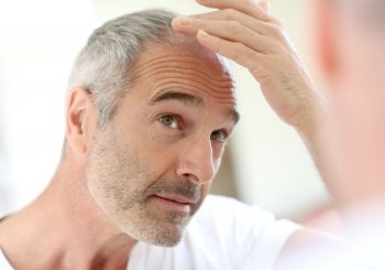 Why men lose their hair and need to have hair implants in Turkey
